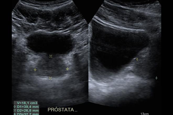 inflamacion cronica en la prostata