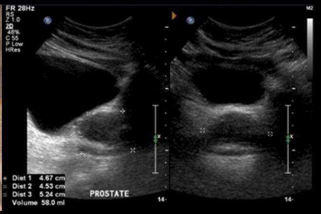 ultrasonidos para próstata biplanar transrectala