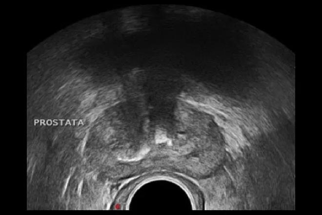 síntomas de prostatitis sinusal crónica