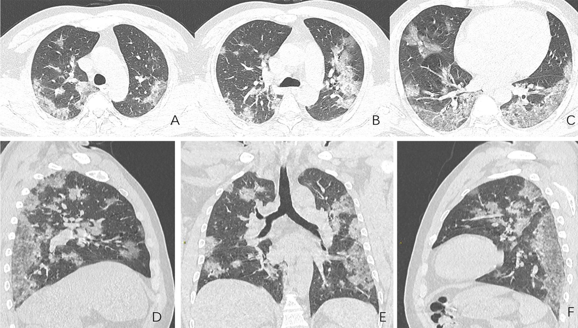 Imágenes de un hombre de 44 años que presenta fiebre y sospecha de neumonía COVID-19