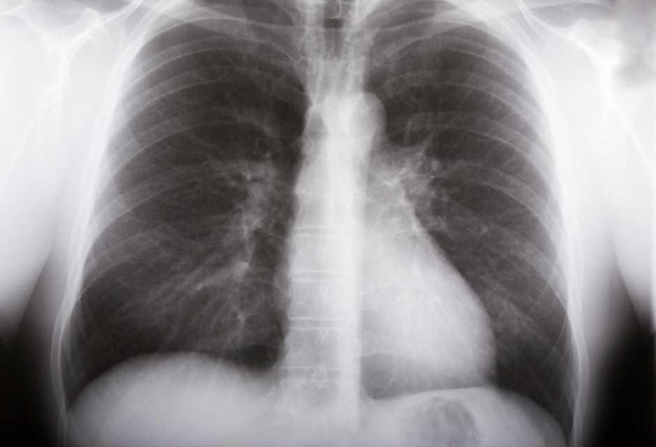 tuberculosis radiografía