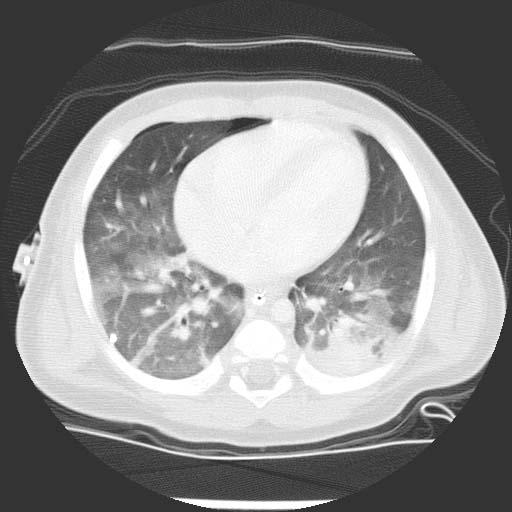 Sindrome pulmon - riñon