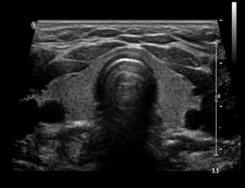 Ultrasonido post operatorio del cáncer de tiroides