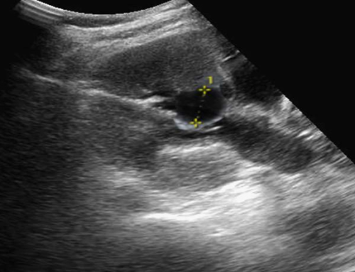 Errores en la exploración ultrasonografía renal