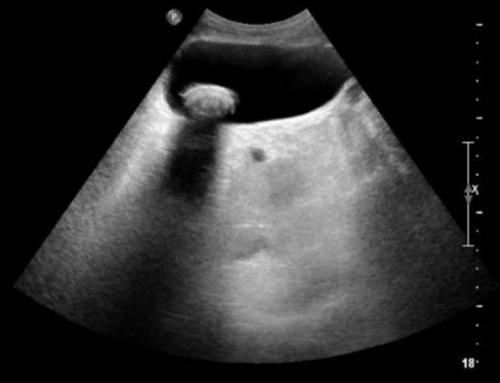 Anatomía de vesícula biliar.